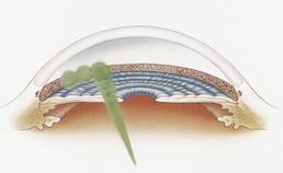 slt, laser slt, trabeculoplastica